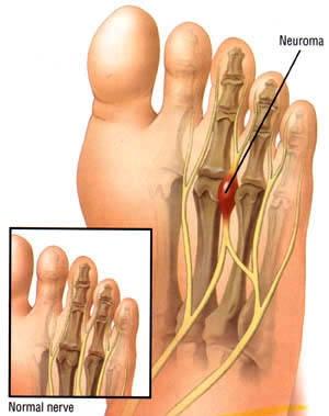 87258ba12e Mortons Neuroma Treatment | Sussex Foot Centre