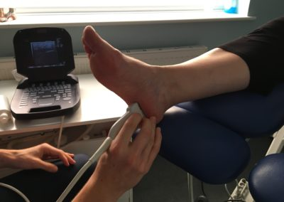 Ultrasound Diagnostic Scan at Sussex Foot Centre