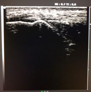 Achilles tendon Ultrasound (1)