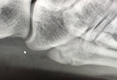Ultrasound diagnosis